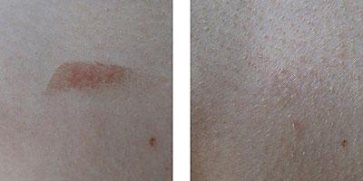 cicatrix före och efter